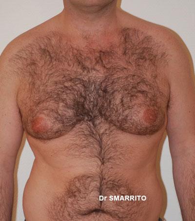 Pourquoi après mensuel la poitrine est plus petite